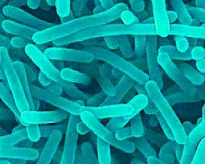 Q. I am pregnant and have read a warning for pregnant women about Listeria. What is it?